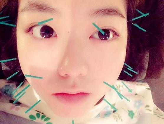 AKB48・峯岸みなみの「顔に鍼をしている写真」を公開し驚愕 - Scoopie ...